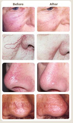 facial threadveins